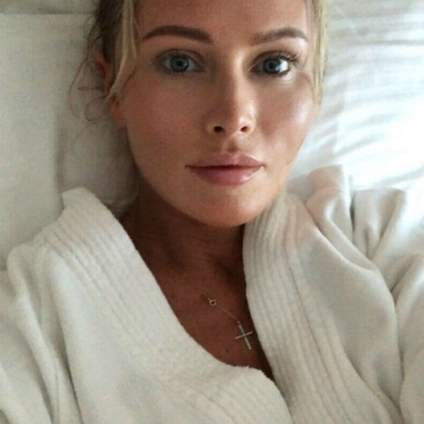 42-летняя Дана Борисова увеличила себе губы