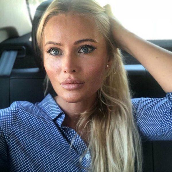 Дана Борисова рассказала, что сделала пластическую операцию по омоложению век